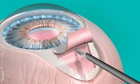 Global Glaucoma Surgery Devices