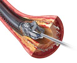 Global Atherectomy Devices Market