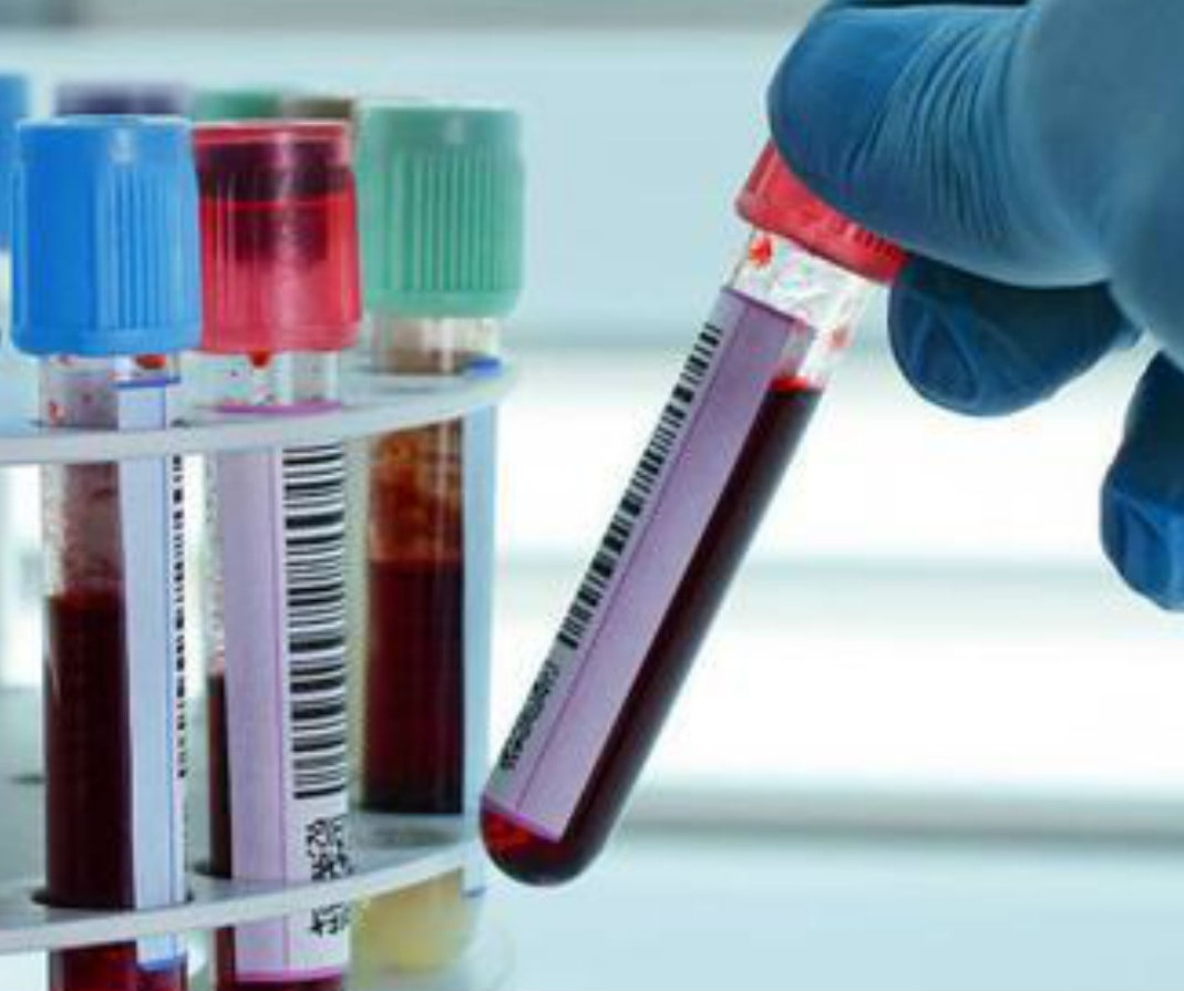 Global Biobanking Sample Market